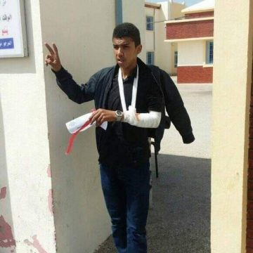 Moroccan forces use violence against Sahrawi pupil | Sahara Press Service